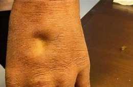 55歲突然發胖,醫生卻說是水腫?4種常見原因,表現各不相同